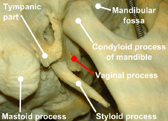 styloid process temporal bone elongated