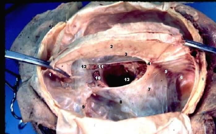 tentorium cerebelli faux cerebri membrane dura meninges