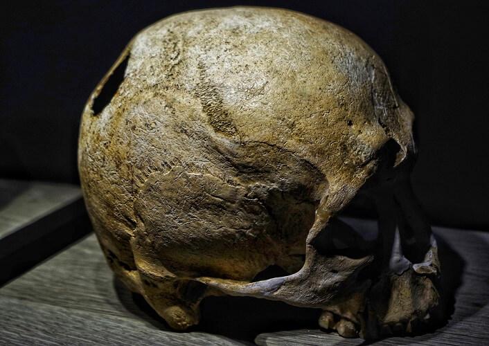 trepanation trephanation parietal bone foramen foramina