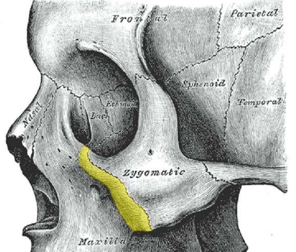 zygomatic bone process maxilla skull facial