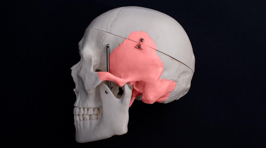 temporal bone cranial bones neurocranium zygomatic process
