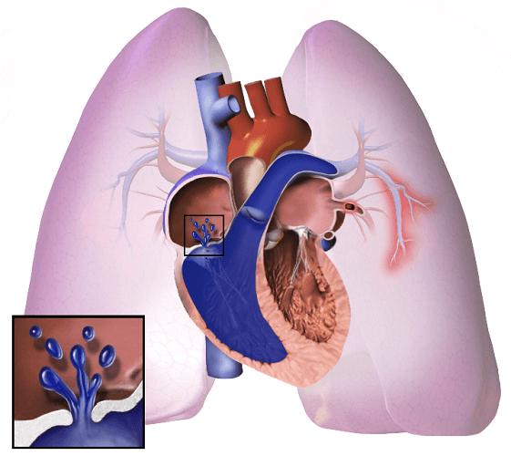 pulmonary artery hypertension arterial PAH