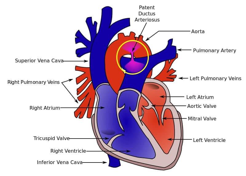 diagram of human heart showing patent ductus arteriosus