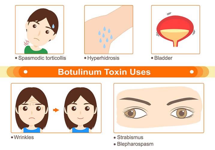 botulinum toxin szemészet