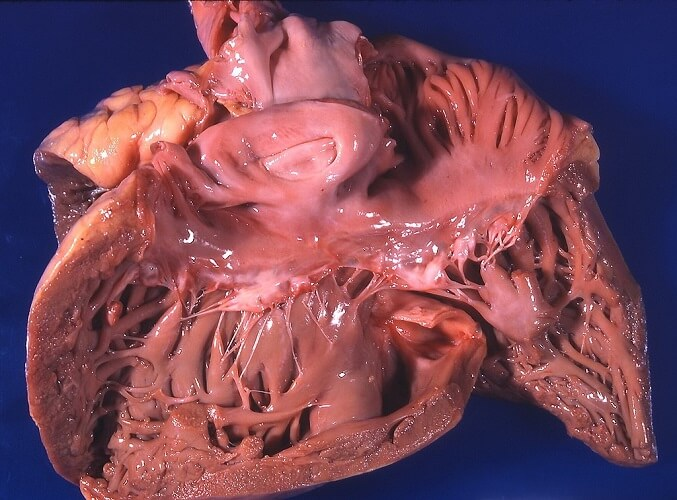 cor pulmonale pulmonary artery hypertension arterial enlarged ventricle hypertrophy