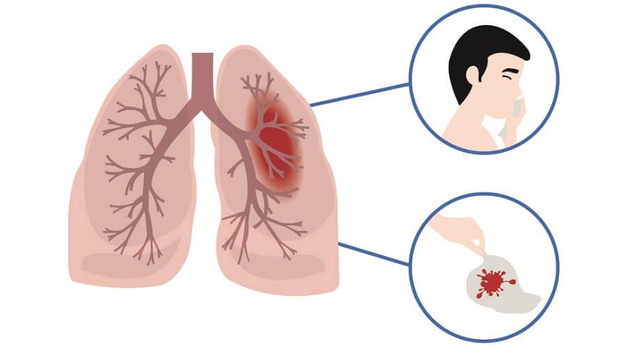 cough up blood haemoptysis hemoptysis