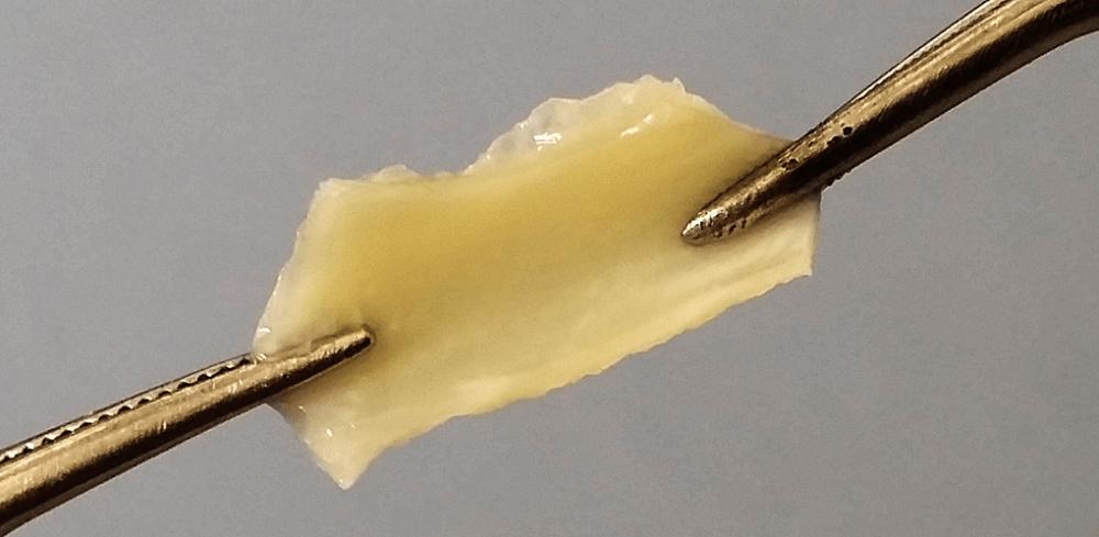elastin elastic fibers connective tissue