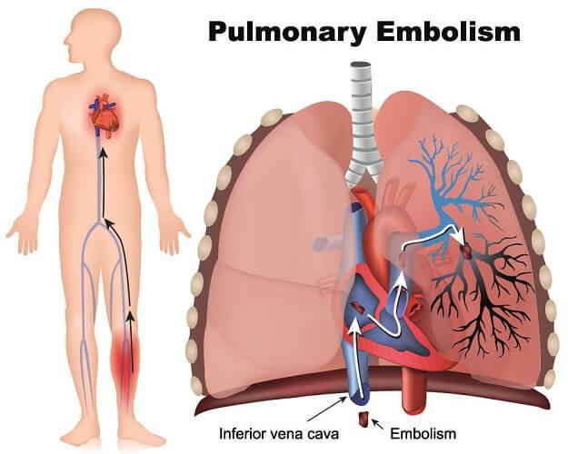 embolism lung pulmonary mechanism