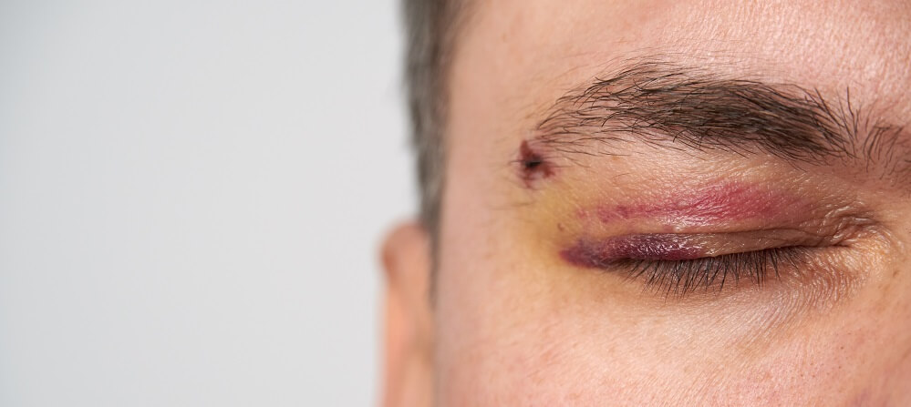 eye trauma bruising facial