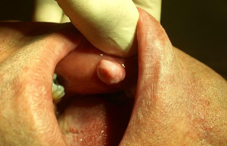 oral fibroma