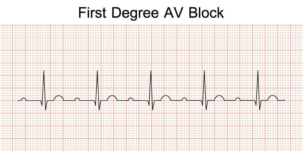 first degree av block PR interval prolonged