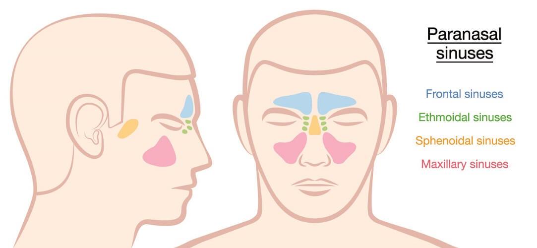 paranasal sinuses sinus maxillary frontal sphenoid sphenoidal ethmoid ethmoidal