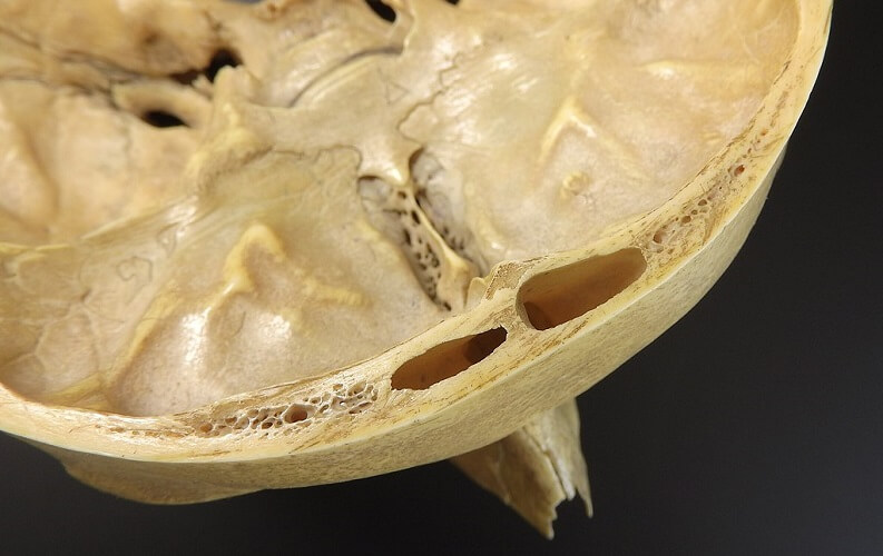 frontal sinus cribriform plate skull bone