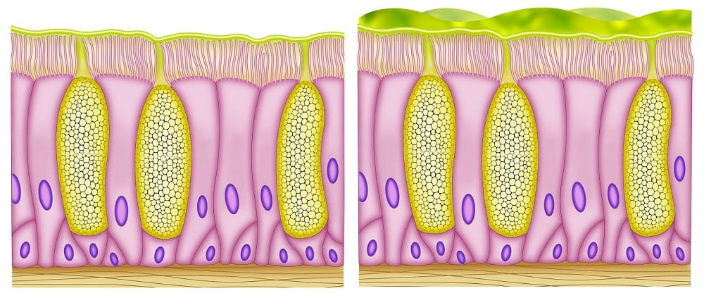 goblet cell mucus mucosal epithelium