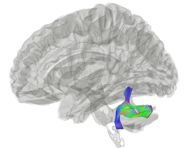 inferior peduncle cerebellum brainstem