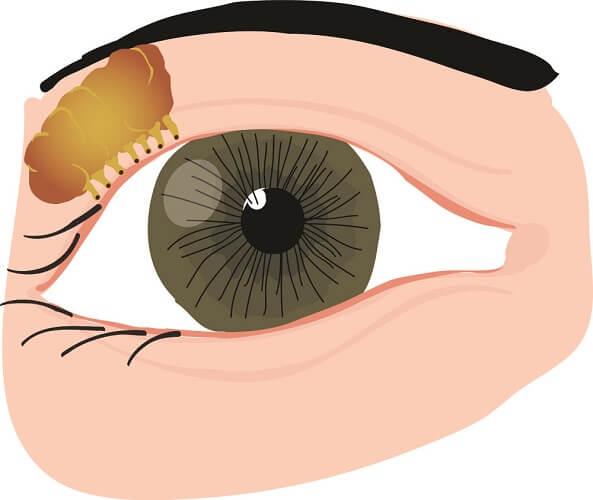 lacrimal gland eyelid facial nerve