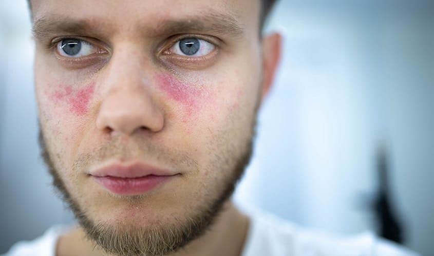 lupus autoimmune disorder rash