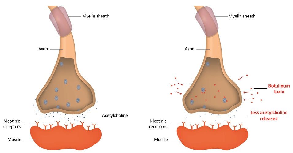 botulinum toxin clostridium botulinum action cholinergic synapse SNARE complex neuron mechanism acetylcholine