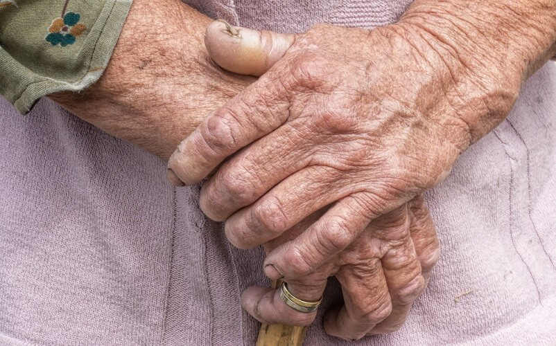 aging oxidation oxidative stress old hands