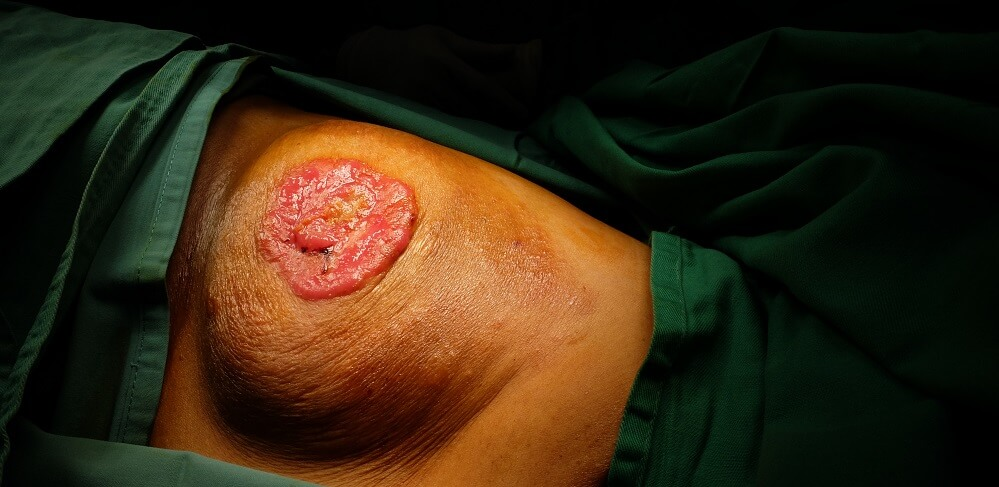 intraductal tumor paget's disease mammary glands