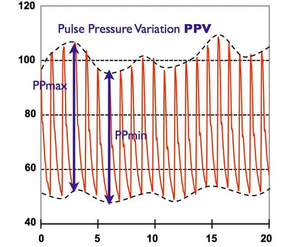 ppv pulse pressure variation respiration ventilation