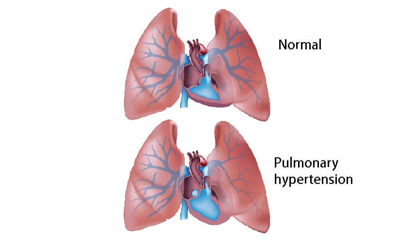pulmonary hypertension PAH arterial vascular