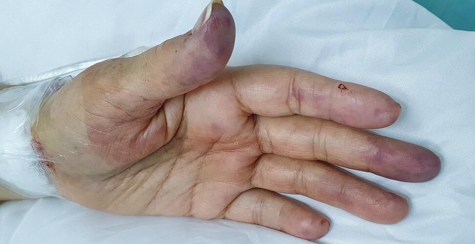 radial artery obstruction cyanosis