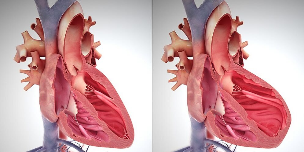 right sided heart failure cor pulmonale enlarged ventricle pulmonary artery