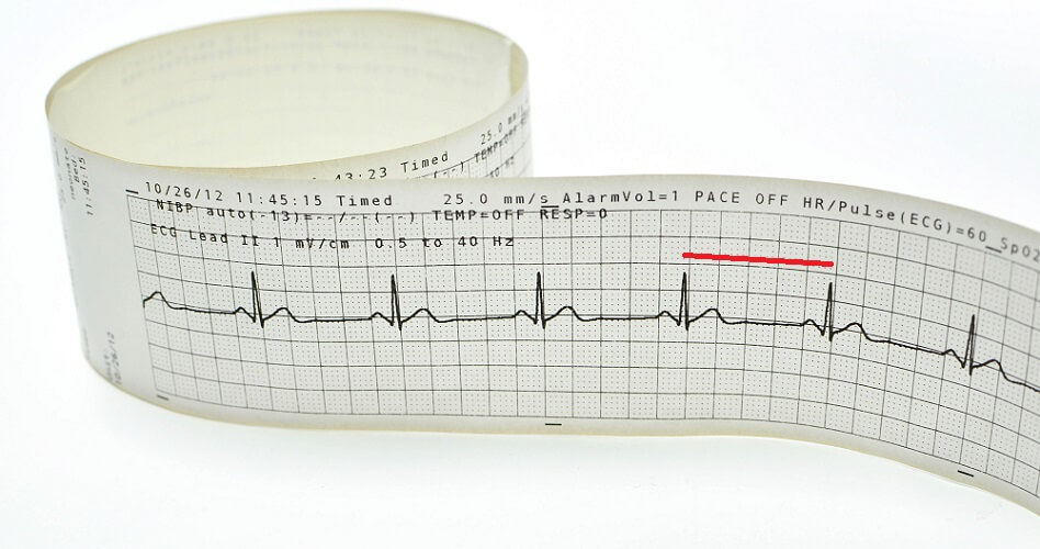 RR PR interval ecg ekg electrocardiogram