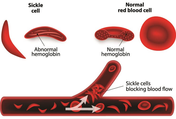 sickle cell anemia erthrocytes red blood cells genetic disorder