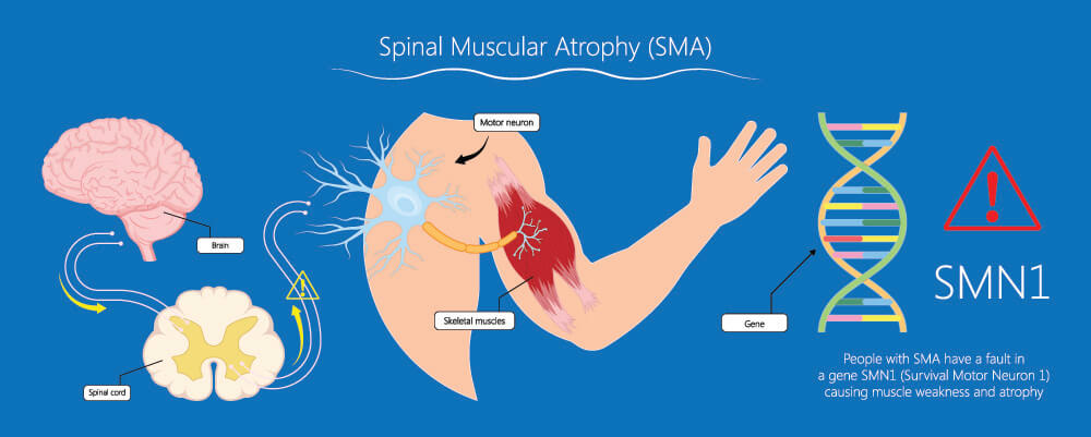 sma spinal muscular muscle atrophy