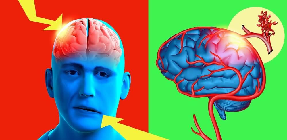stroke ischemic brain facial nerve paralysis