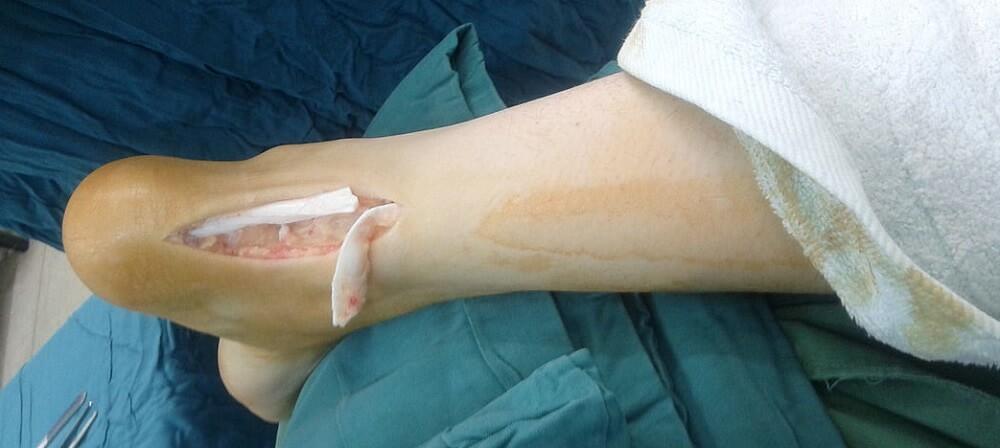 achilles tendon collagen strong connective tissue injury achilles tendon