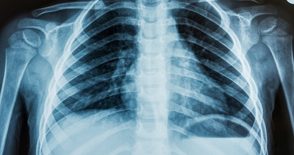 xray thoracic chest ribs heart
