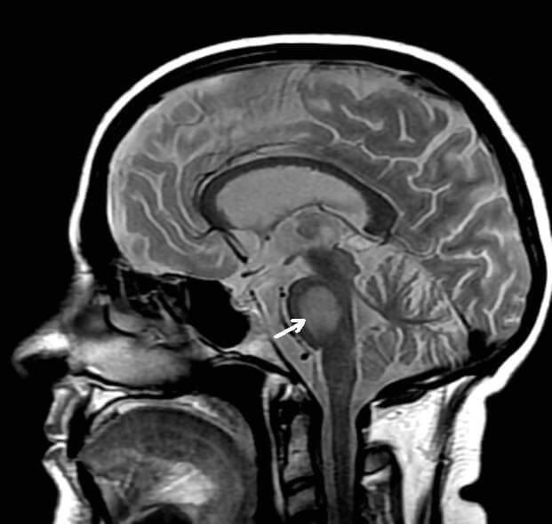 Brain scan showing location of central pontine myelinolysis