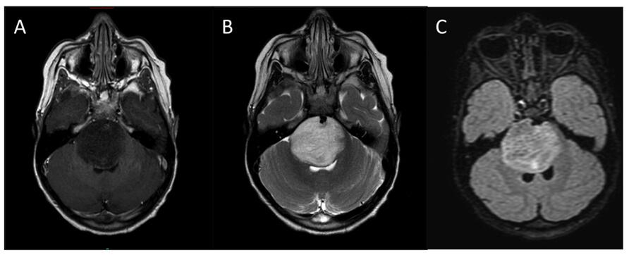 MRI scan of a pontine glioma