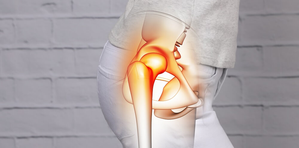 acetabulofemoral hip joint