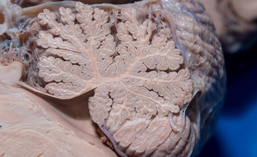 cerebellum slice brain anatomy