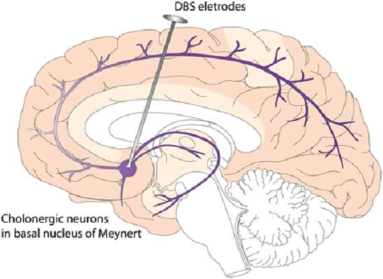 deep brain stimulation dbs basal forebrain cerebrum