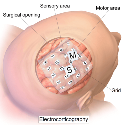 electrocorticography mapping brain