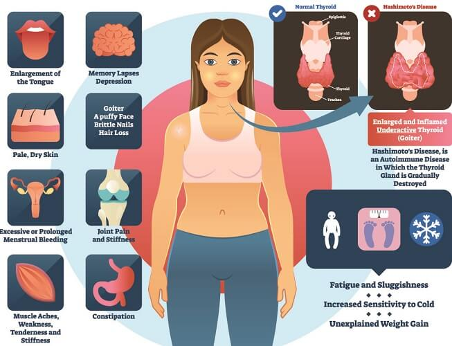 hashimoto's thyroiditis autoimmune disease pernicious anemia anaemia