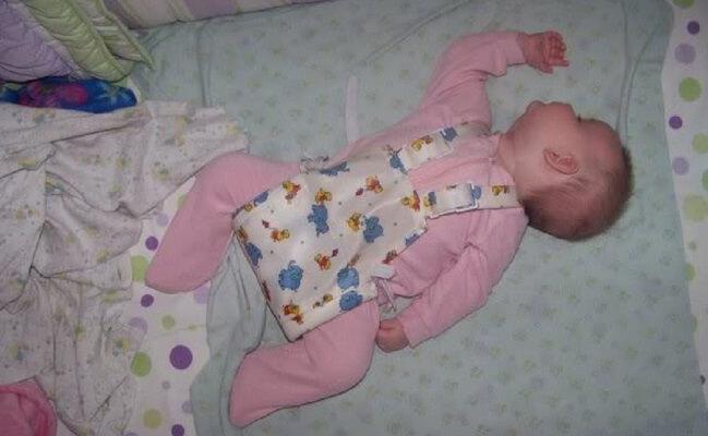hip abduction braces baby dysplacia