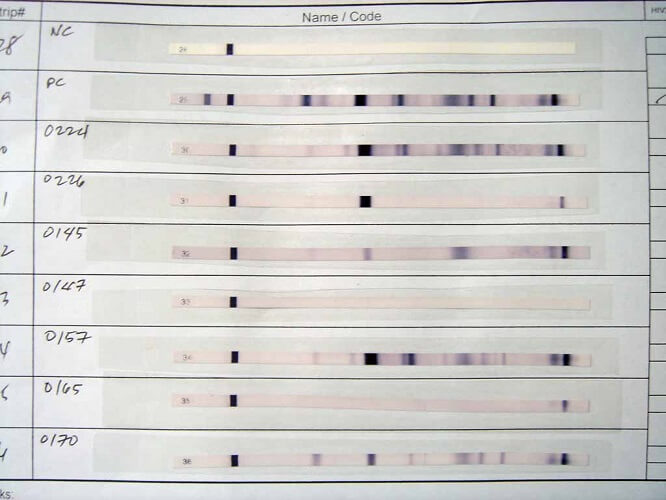 western blot hiv test