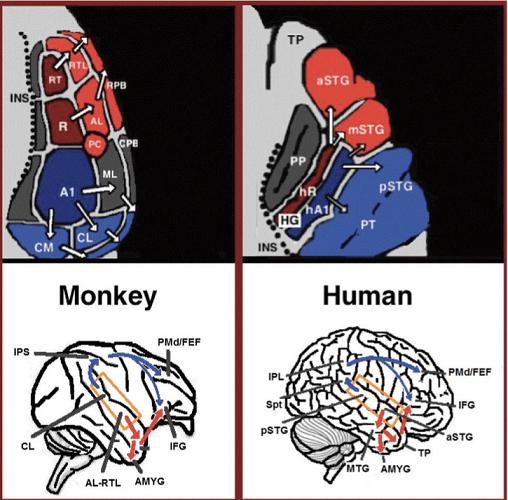 neurolinguistucs speech broca's area aphasia expressive receptive