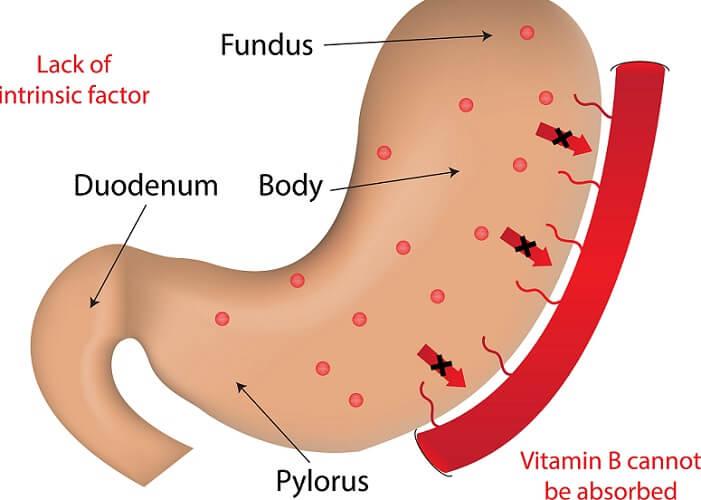 pernicious anemia anaemia B12 cobalamin intrinsic factor