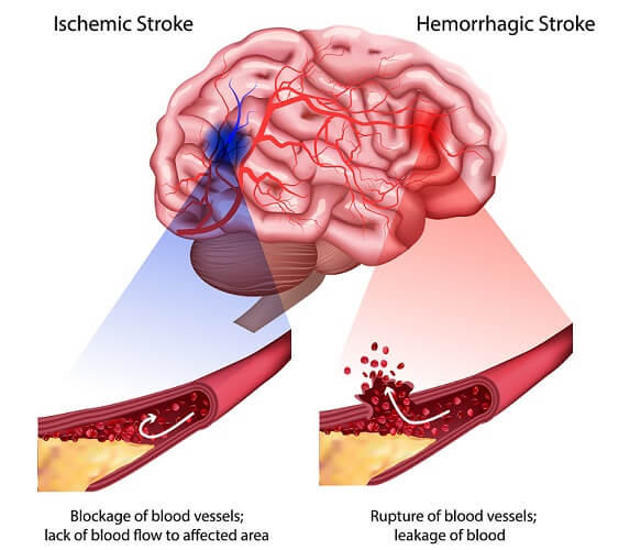 stroke cerebrovascular accident cva hemorrhagic ischemic
