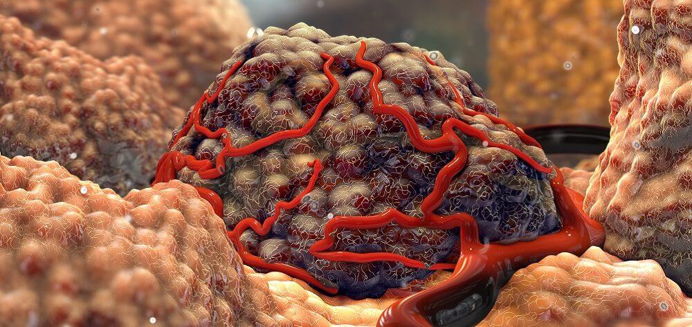 tumor cancer mutation DNA