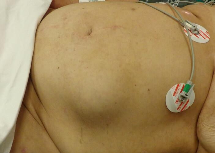 ventral hernia abdominal hernia