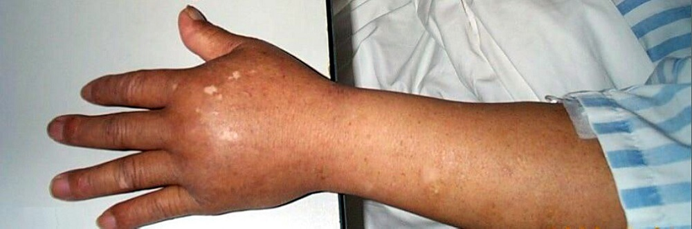 capillary leak syndrome edema oedema arm lymph interstitial fluid