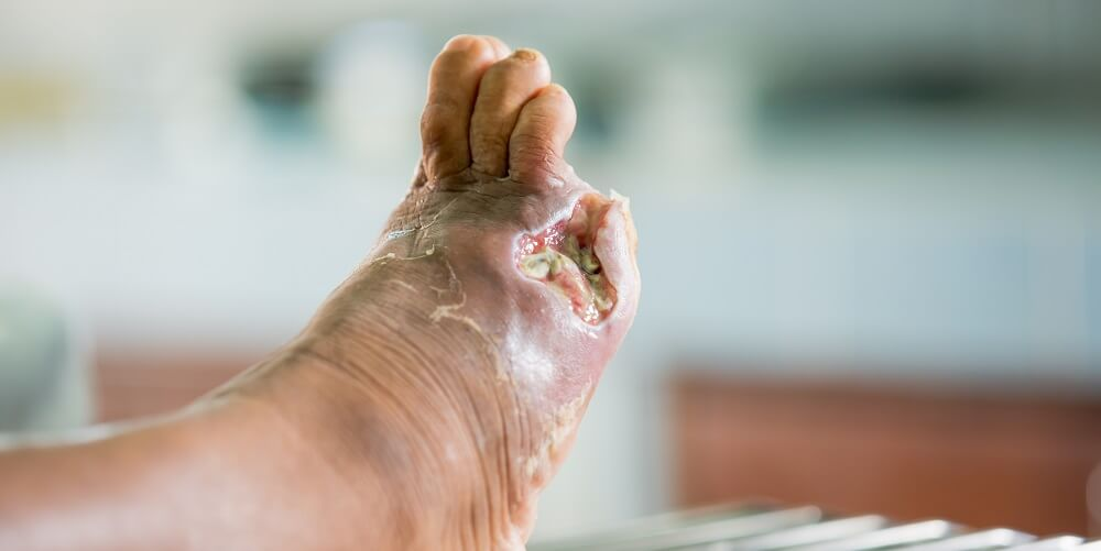 diabetic foot perfusion necrosis wound amputation